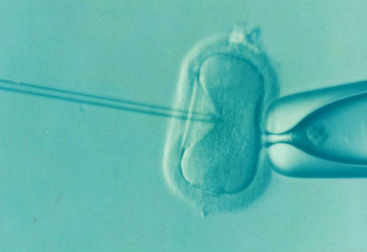 what happens during an IVF procedure